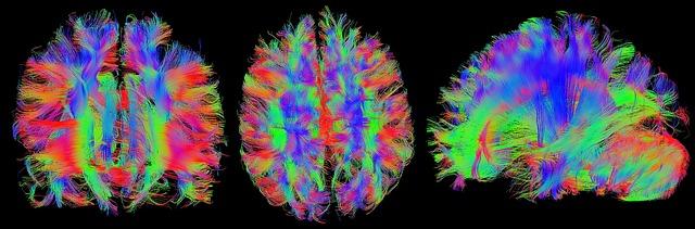 Gehirn, MRT-Bild